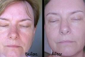 fast skin rejuvenation
